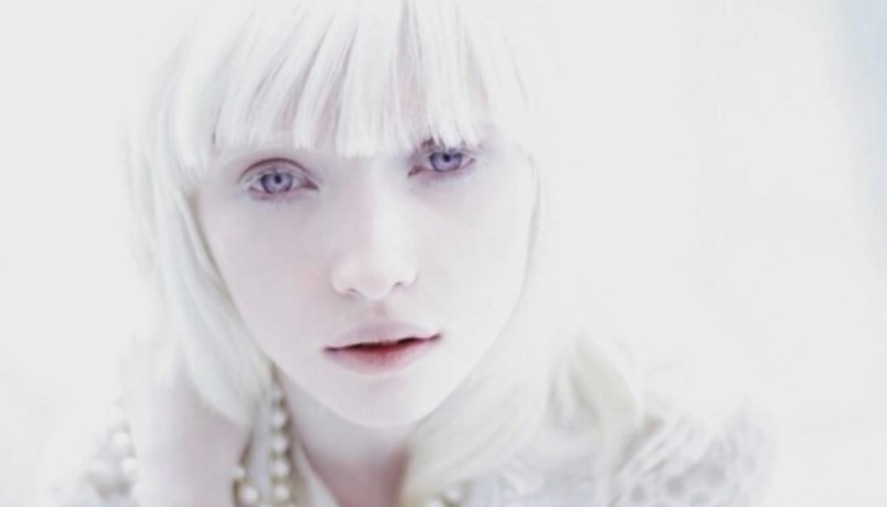Kako je živeti sa albinizmom na Balkanu?